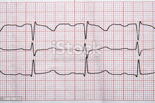 495956356 istock photo Fragment of a normal electrocardiogram with arrhythmia elements. 1059196722