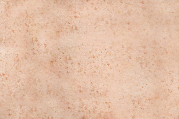 Freckled human skin stock photo