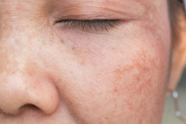 freckles on the face stock photo