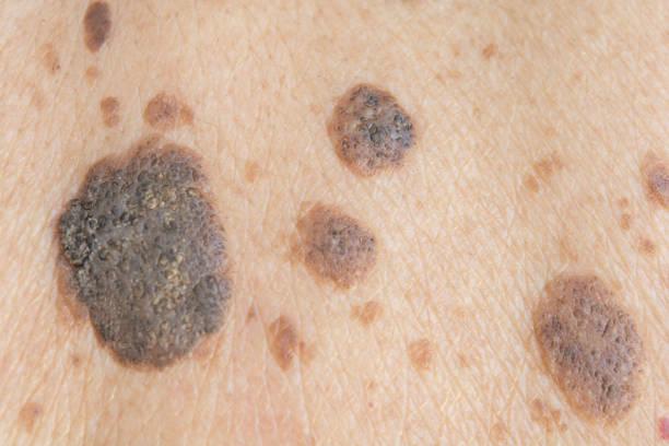 freckles on the skin - melanom stock-fotos und bilder