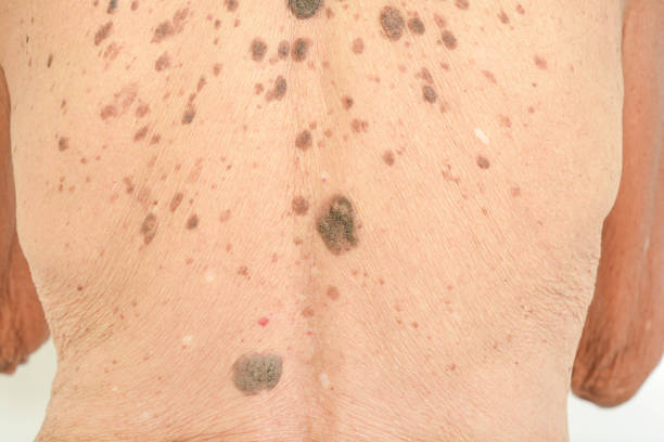 freckles on the skin freckles on the skin wart stock pictures, royalty-free photos & images