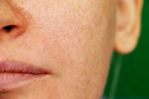 Girl with problem skin. Freckles, pigmentation, enlarged pores.