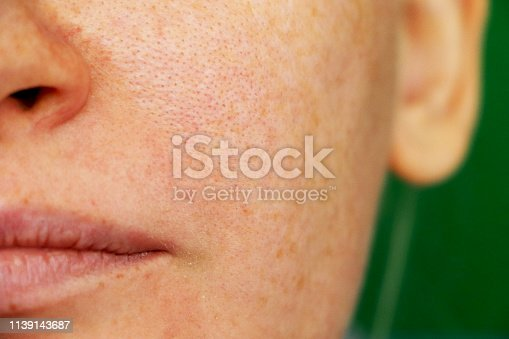 Girl with problem skin. Freckles, pigmentation, enlarged pores.