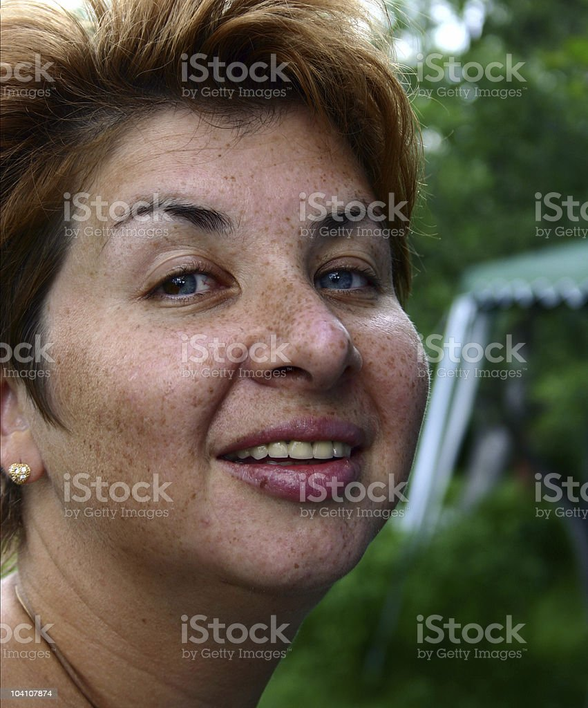 Freckles-2 royalty-free stock photo