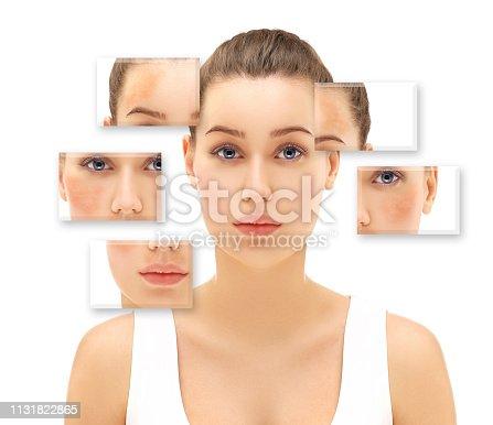 istock Freckles,dark spots,hyperpigmentation(melasma or chloasma) 1131822865