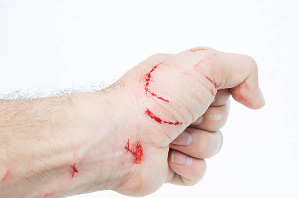 Fresh wound and blood from a bite cat Fresh wound and blood from a bite cat tetanus stock pictures, royalty-free photos & images