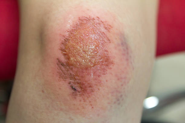 Fresh wound with lymph and blood on asian female knee background stock photo