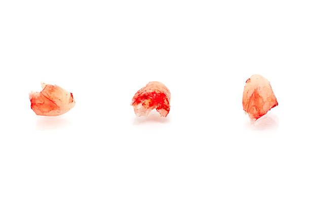 Freshly pulled tooth with blood, isolated on white background stock photo