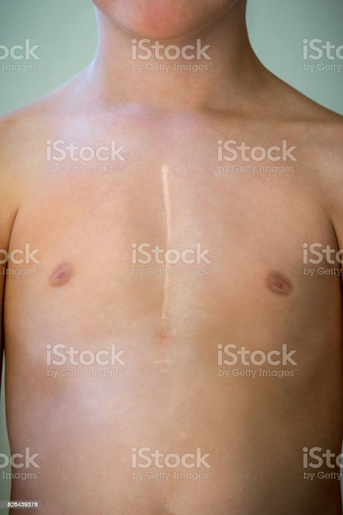 Front view of young caucasian boy with healed surgical scar after heart surgery. stock photo