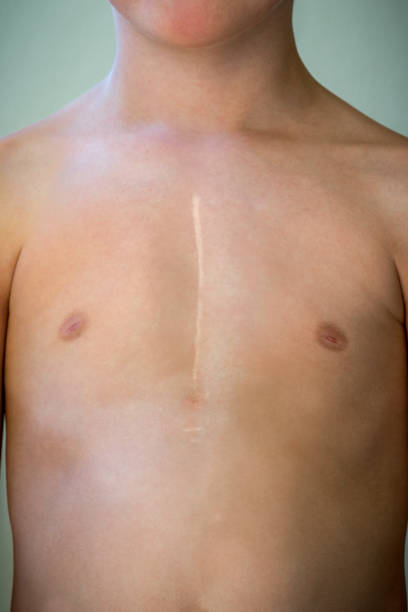 Front view of young caucasian boy with healed surgical scar after heart surgery. Front view of young caucasian boy with healed surgical scar after heart surgery. Upper body, torso with bare skin. scar stock pictures, royalty-free photos & images