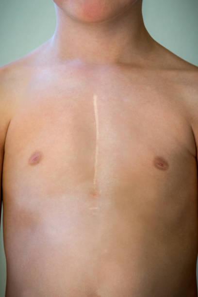 心臓手術後の治癒の手術痕の白人少年の正面。 ストックフォト