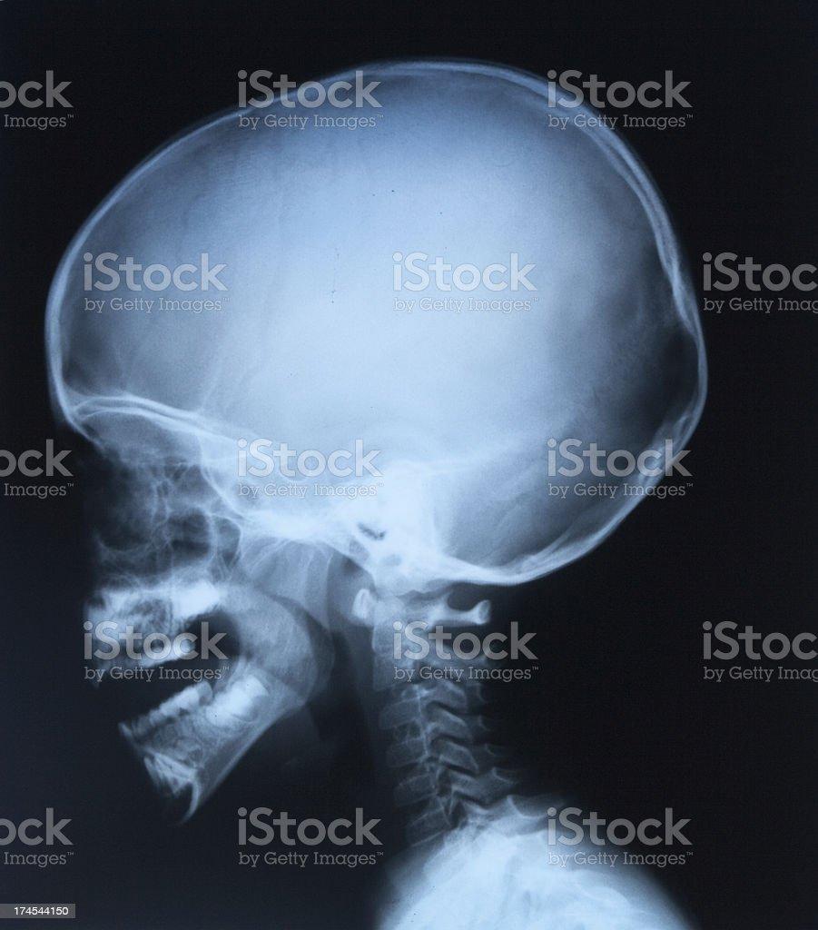 Full Head X-Ray Profile royalty-free stock photo