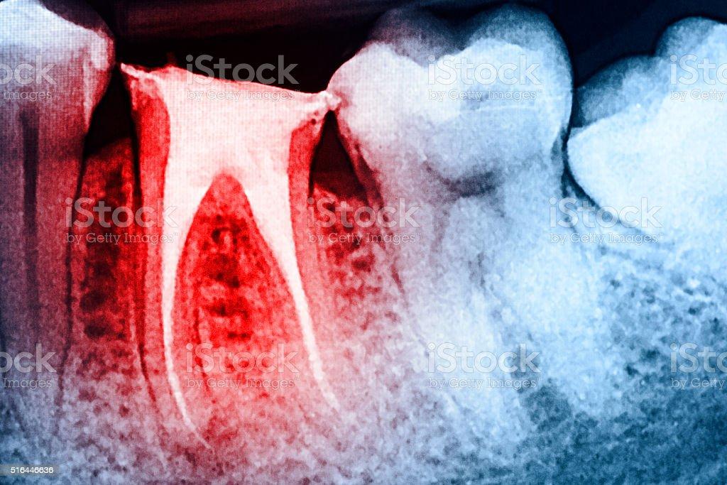 Durchgehender Verschluß der Stamm Kanal Systeme auf Zähne - Lizenzfrei Anatomie Stock-Foto