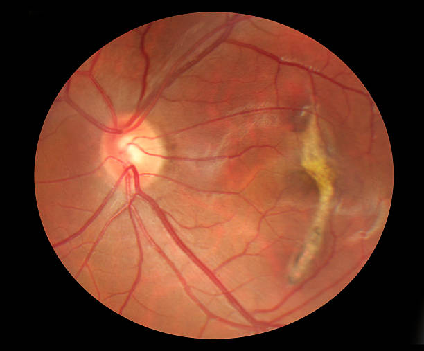 fundus photo of macular scarring medical image - deterioration stock pictures, royalty-free photos & images
