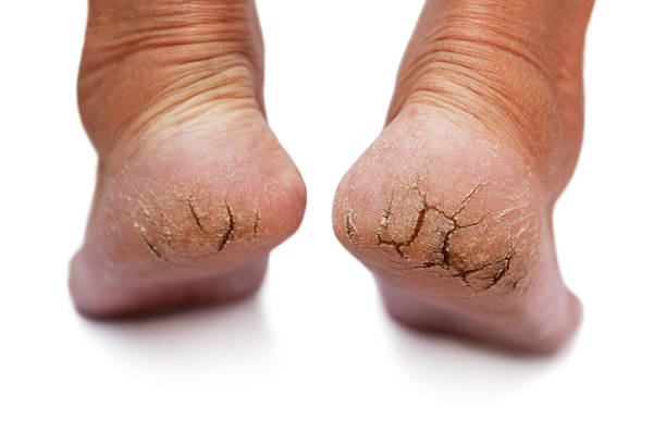 fungal disease - human foot stock photos and pictures