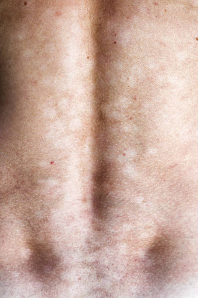Fungal infection of the skin stock photo