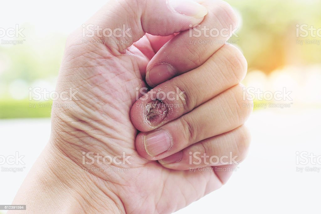 Fungal Nail Infection And Damage On Human Hand Stock Photo & More ...