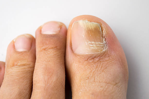 fungal nail infection - disfigure stock pictures, royalty-free photos & images