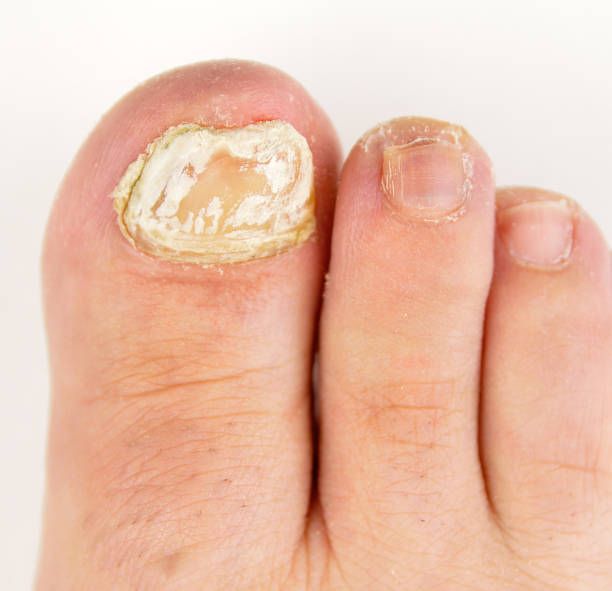 fungal nail infection stock photo