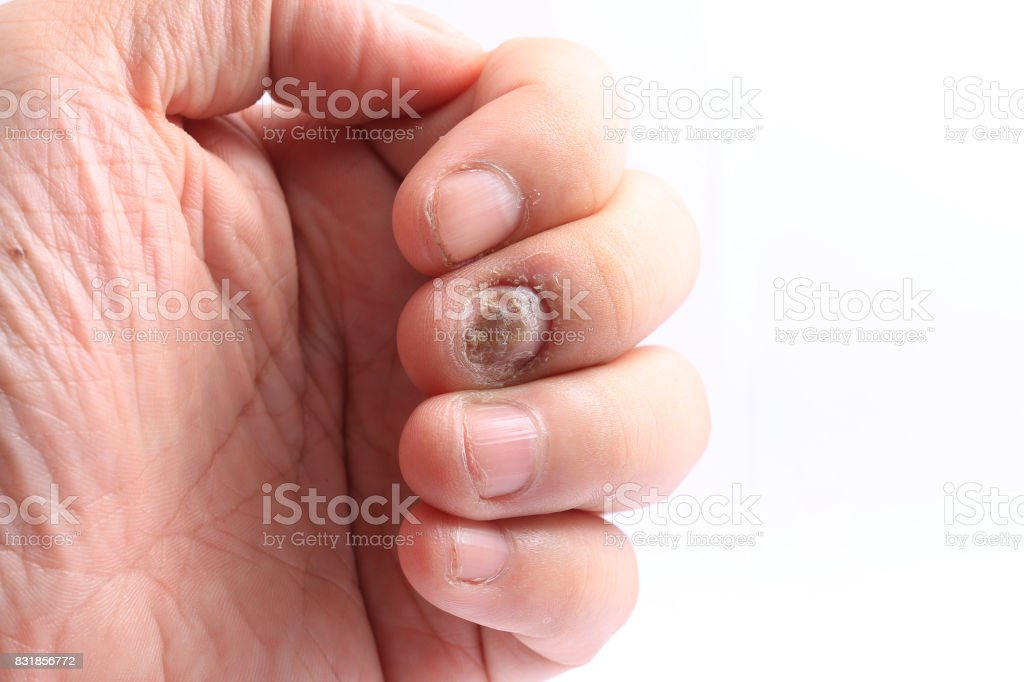 Fungus Infection on Nails Hand, Finger with onychomycosis, Fungal infection on nails handisolated on white background. stock photo
