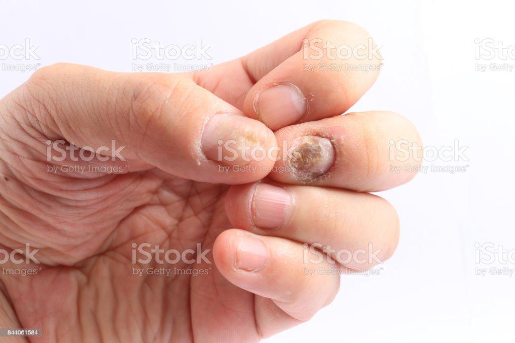 Fotografía de Infección De Hongo En Las Uñas De La Mano Dedo Con ...