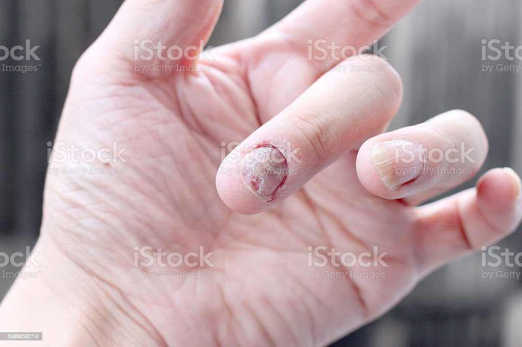 Fungus Infection On Nails Hand Finger With Onychomycosis Stock Photo ...