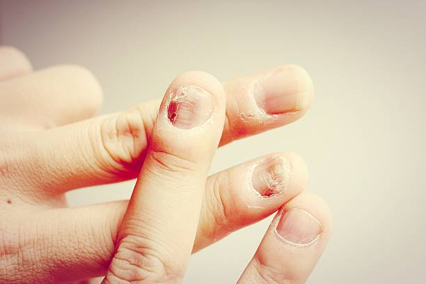 Fungus Infection on Nails Hand, Finger with onychomycosis. - sof stock photo