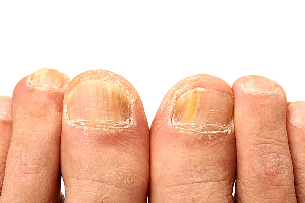 Fungus Infection on Nails of Man's Foot stock photo