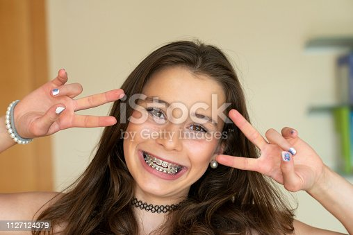 Happy teenage girl with dental brace looking at camera. She has long brown hair and a big smile in her face.
