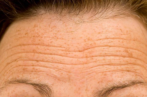 Furrowed sourcils de soucieux personne - Photo