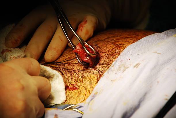 vesícula biliar está vindo - vesicula biliar - fotografias e filmes do acervo