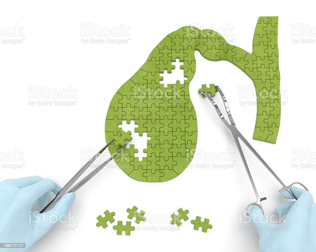 Gallbladder surgery operation (medicine puzzle concept) stock photo