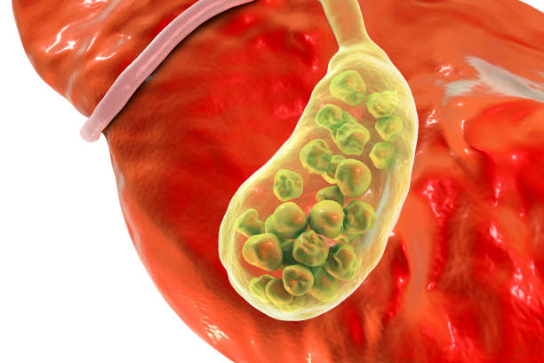 Gallstones, illustration showing bottom view of liver and gallbladder with stones stock photo
