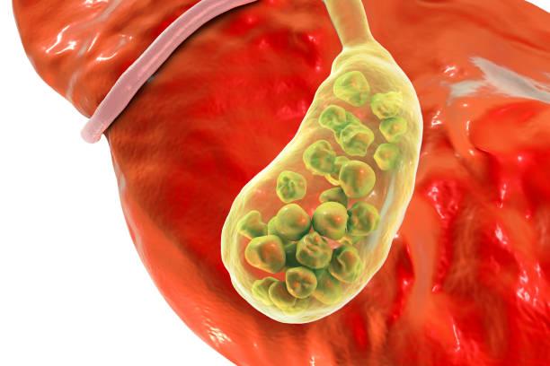 cálculos biliares, ilustração mostrando vista inferior do fígado e da vesícula biliar com pedras - vesicula biliar - fotografias e filmes do acervo