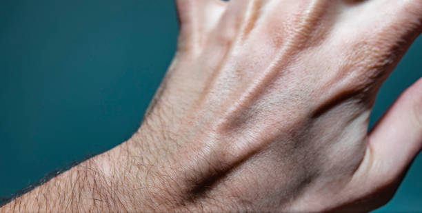 ganglion cyst lump on left hand - cyst stock pictures, royalty-free photos & images
