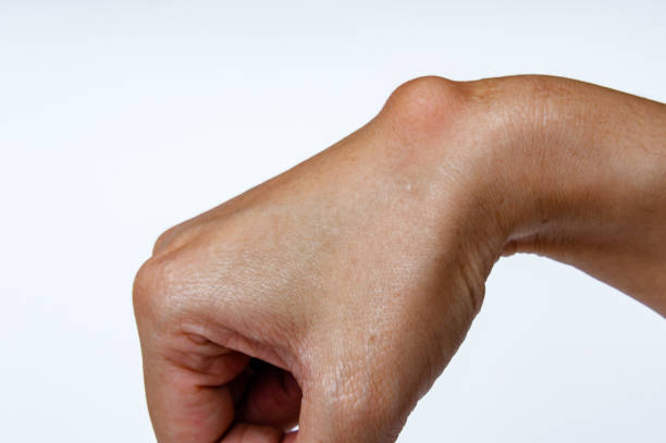ganglion cyst on woman hand on white background - cyst stock pictures, royalty-free photos & images