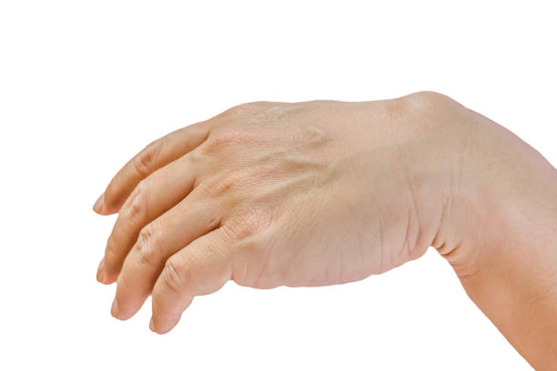 ganglion cyst - cyst stock pictures, royalty-free photos & images