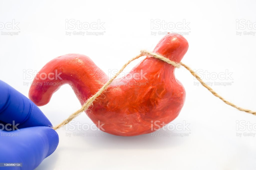 Gastric or stomach banding surgery for weight loss or treatment of diaphragmatic hernia concept photo. Doctor pinched anatomical model of stomach using rope, preventing flow of food, showing procedure stock photo