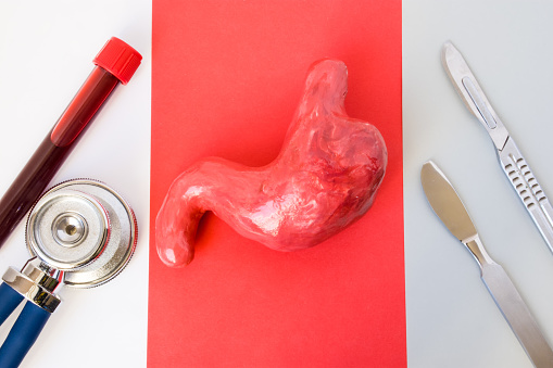 istock Gastric surgery or operation on stomach concept design photo. Figure of stomach lies in middle on red background, on sides are tube of blood, stethoscope and two surgical scalpel on white and gray 947188538