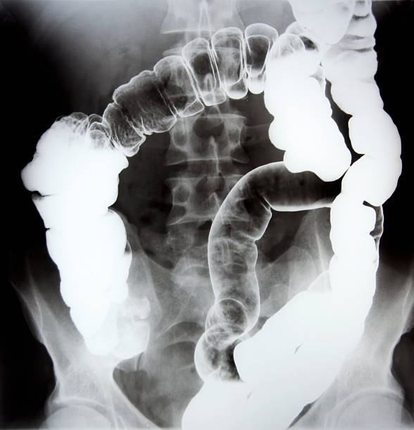 gastroenterology - human intestine stock photos and pictures