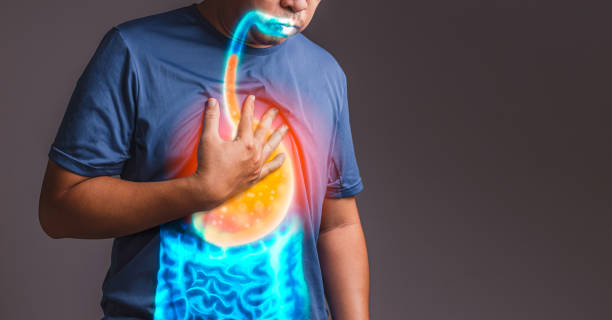 gastroesophageal reflux disease (GERD) gastroesophageal reflux disease (GERD) heartburn throat pain stock pictures, royalty-free photos & images