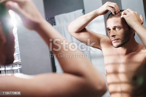 1134770826 istock photo Gay Man Worried For Hair Loss Alopecia In Home Bathroom 1134770826