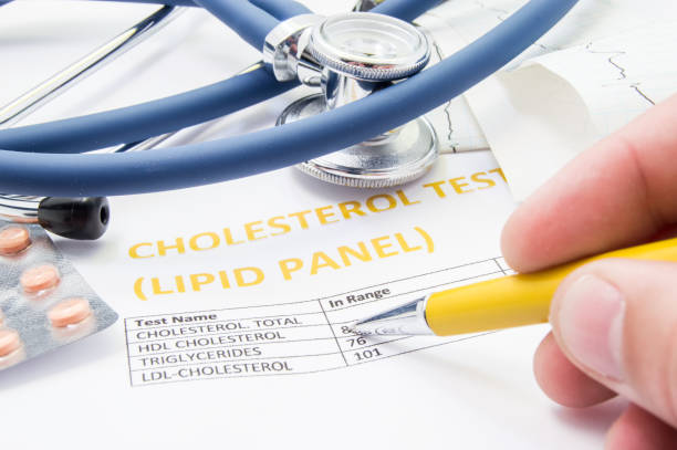 General practitioner checks cholesterol levels in patient test results on blood lipids. Statin pills, stethoscope, cholesterol test and hand of doctor, pointing to increasing its level in concept General practitioner checks cholesterol levels in patient test results on blood lipids. Statin pills, stethoscope, cholesterol test and hand of doctor, pointing to increasing its level in concept cholesterol stock pictures, royalty-free photos & images
