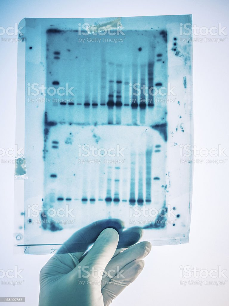 DNA genetic analysis results stock photo