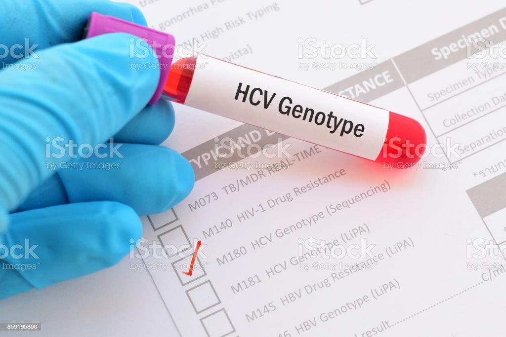 HCV genotype test stock photo
