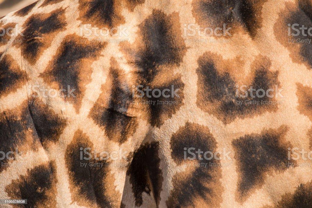 manchas de color cafe claro en la piel