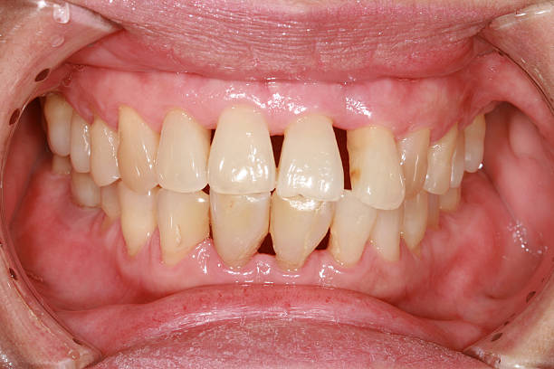 gingival recession. stock photo