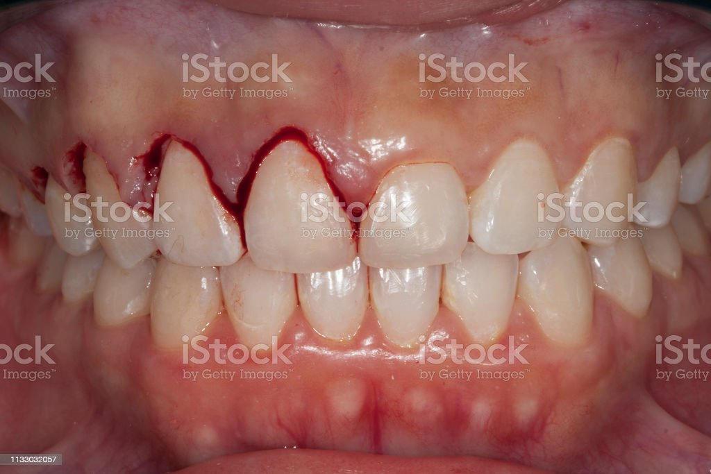 gingivectomy stock photo