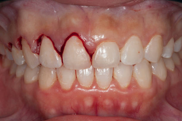 gingivectomy stock photo