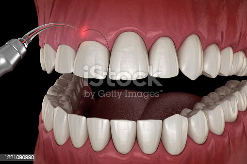 Gingivectomy surgery with laser using.  Medically accurate tooth 3D illustration